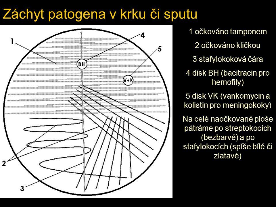Záchyt patogena v krku či sputu 1 očkováno tamponem 2 očkováno kličkou 3 stafylokoková čára 4 disk BH (bacitracin pro hemofily) 5 disk VK (vankomycin