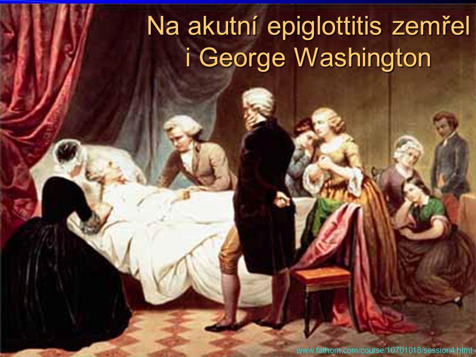 Na akutní epiglottitis zemřel i George Washington www.fathom.com/course/10701018/session4.html