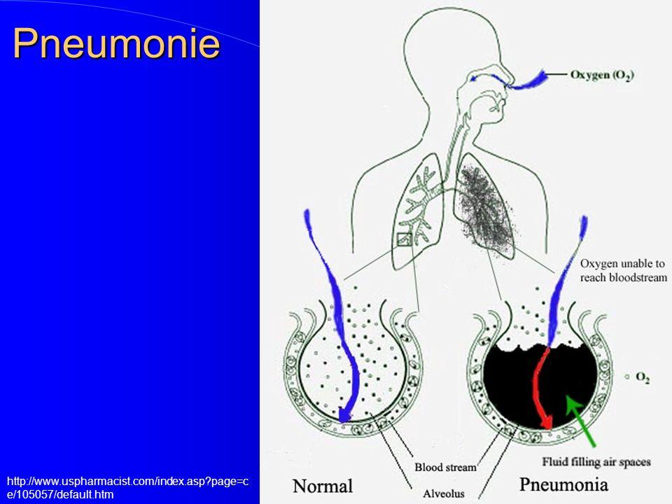 Pneumonie http://www.uspharmacist.com/index.asp?page=c e/105057/default.htm