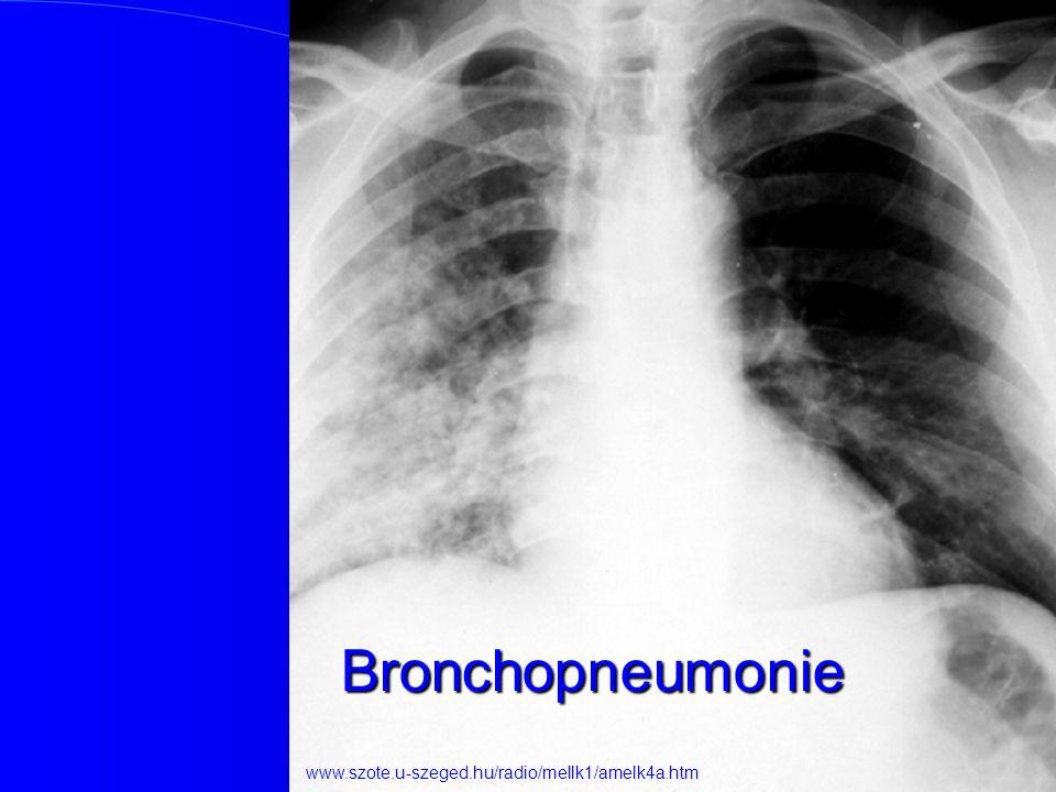Bronchopneumonie www.szote.u-szeged.hu/radio/mellk1/amelk4a.htm