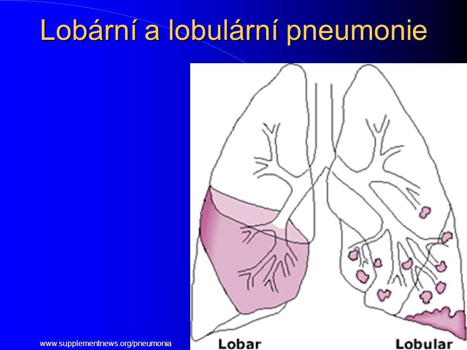 Lobární a lobulární pneumonie www.supplementnews.org/pneumonia