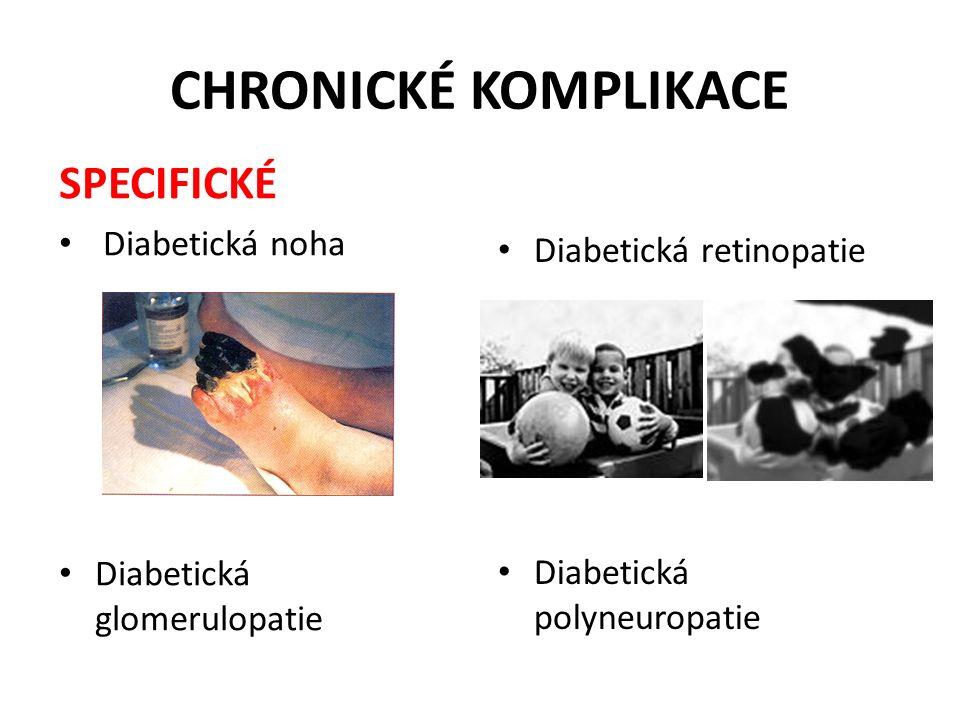 CHRONICKÉ KOMPLIKACE SPECIFICKÉ Diabetická noha Diabetická glomerulopatie Diabetická retinopatie Diabetická polyneuropatie