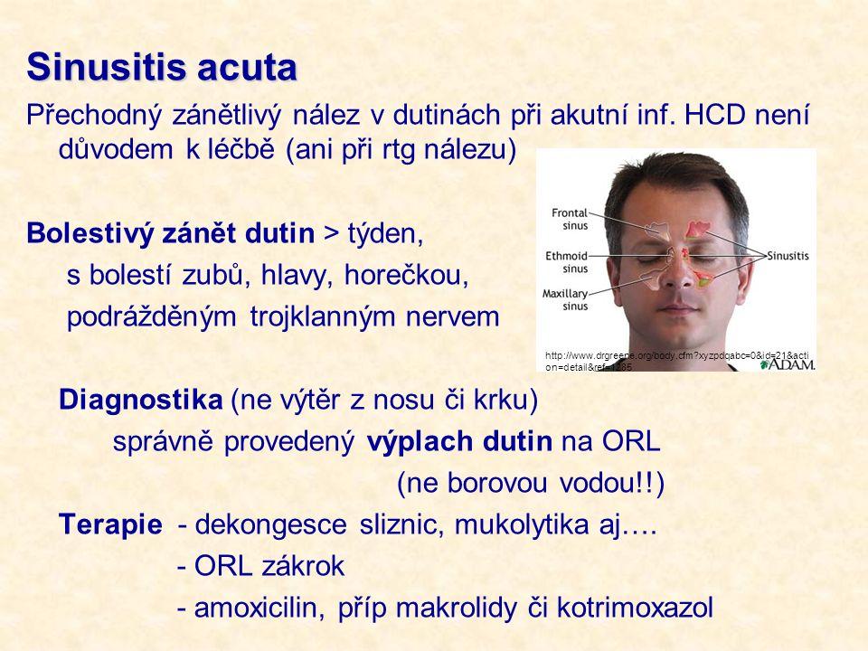 Sinusitis acuta Přechodný zánětlivý nález v dutinách při akutní inf. HCD není důvodem k léčbě (ani při rtg nálezu) Bolestivý zánět dutin > týden, s bo