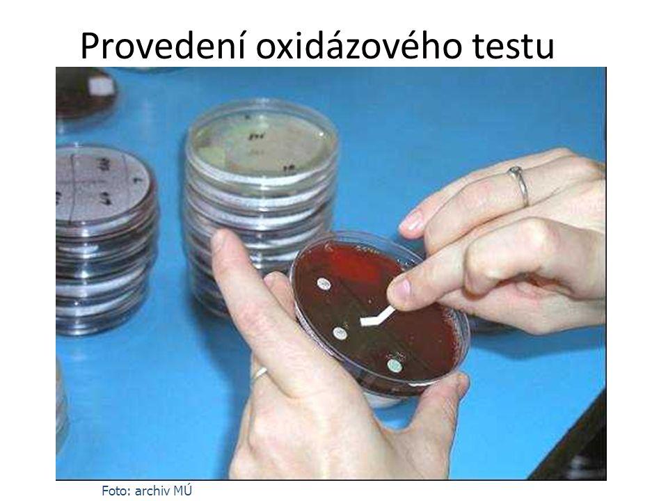 Provedení oxidázového testu Foto: archiv MÚ