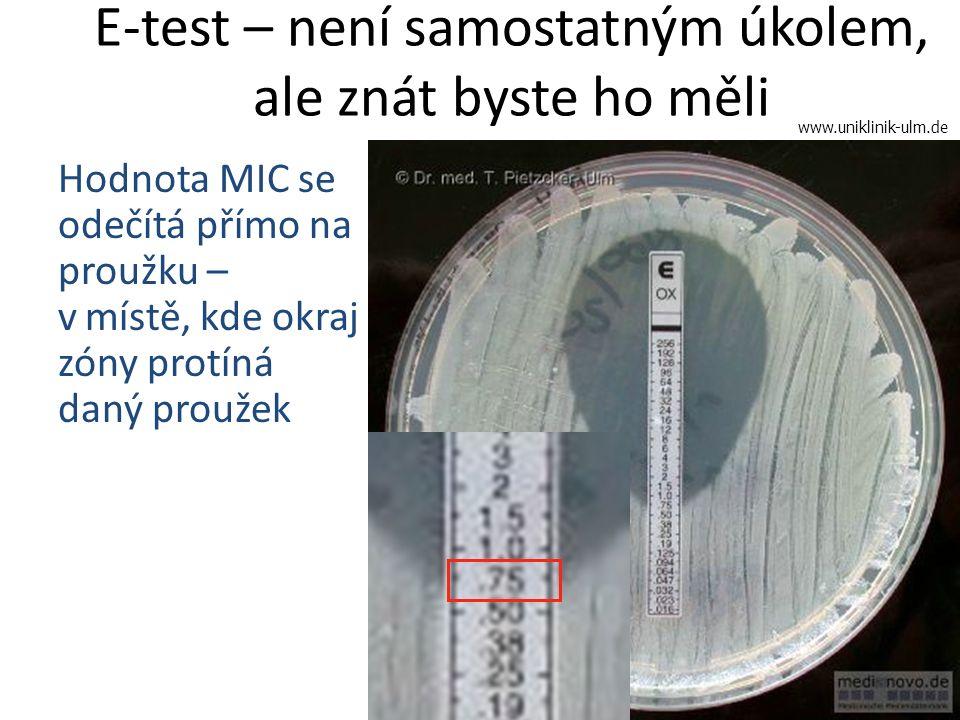 E-test – není samostatným úkolem, ale znát byste ho měli Hodnota MIC se odečítá přímo na proužku – v.místě, kde okraj zóny protíná daný proužek www.un