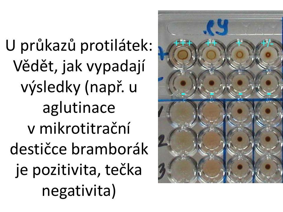 U průkazů protilátek: Vědět, jak vypadají výsledky (např. u aglutinace v mikrotitrační destičce bramborák je pozitivita, tečka negativita) +++ ++ + +/