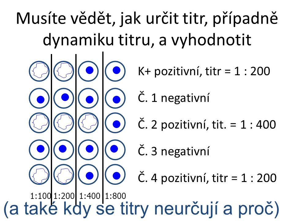 Musíte vědět, jak určit titr, případně dynamiku titru, a vyhodnotit K+ pozitivní, titr = 1 : 200 Č. 1 negativní Č. 2 pozitivní, tit. = 1 : 400 Č. 3 ne