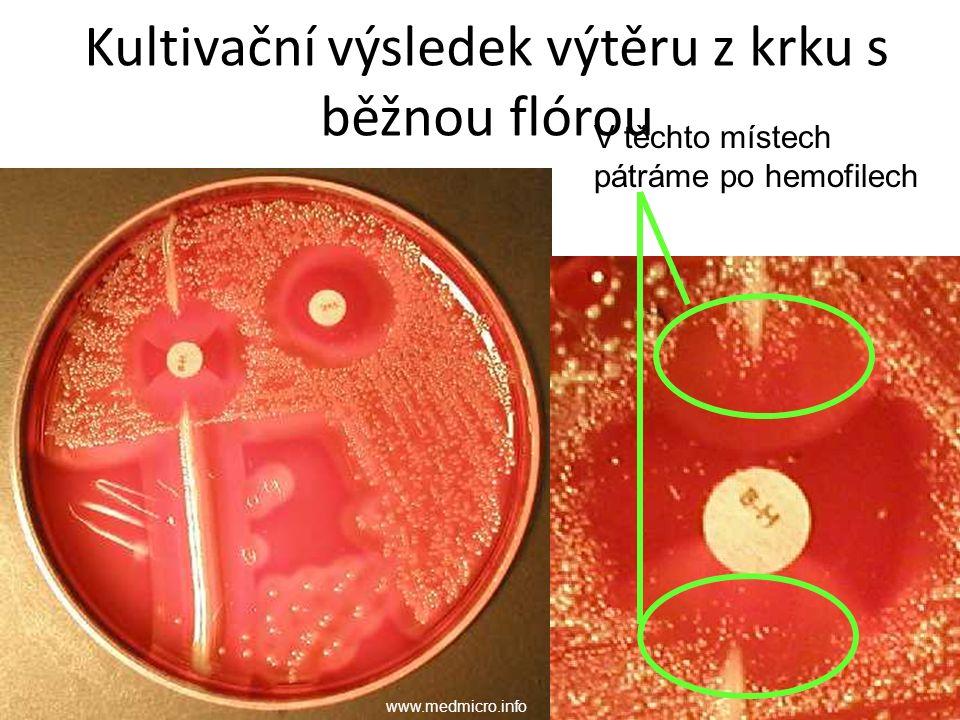 Kultivační výsledek výtěru z krku s běžnou flórou V těchto místech pátráme po hemofilech www.medmicro.info