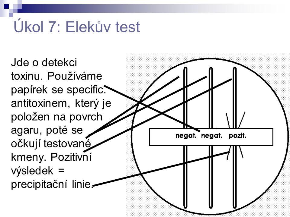 Úkol 7: Elekův test Jde o detekci toxinu. Používáme papírek se specific. antitoxinem, který je položen na povrch agaru, poté se očkují testované kmeny