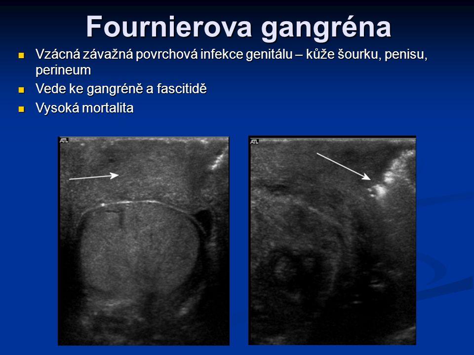 Fournierova gangréna Vzácná závažná povrchová infekce genitálu – kůže šourku, penisu, perineum Vzácná závažná povrchová infekce genitálu – kůže šourku, penisu, perineum Vede ke gangréně a fascitidě Vede ke gangréně a fascitidě Vysoká mortalita Vysoká mortalita