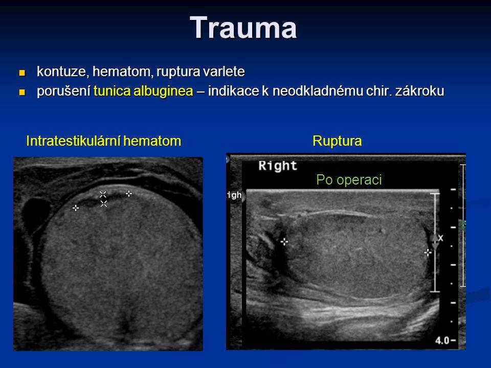 Trauma kontuze, hematom, ruptura varlete kontuze, hematom, ruptura varlete porušení tunica albuginea – indikace k neodkladnému chir. zákroku porušení