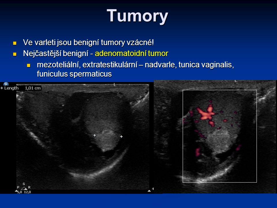 Tumory Ve varleti jsou benigní tumory vzácné! Ve varleti jsou benigní tumory vzácné! Nejčastější benigní - adenomatoidní tumor Nejčastější benigní - a