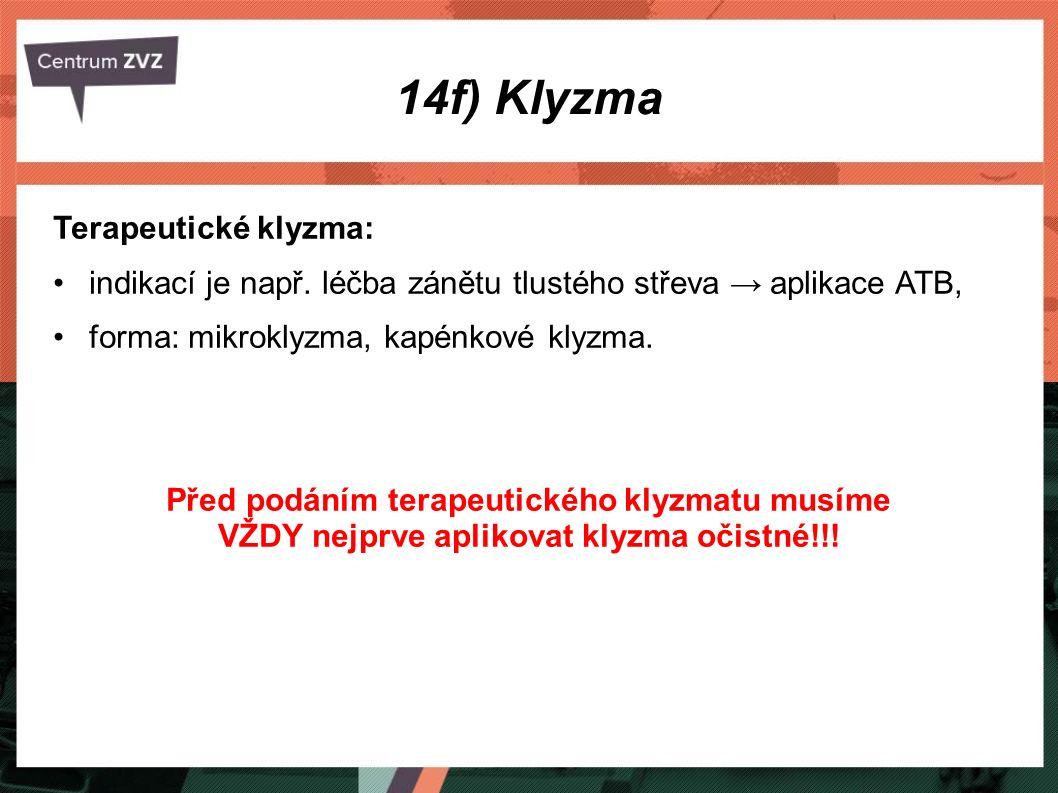 14f) Klyzma Terapeutické klyzma: indikací je např. léčba zánětu tlustého střeva → aplikace ATB, forma: mikroklyzma, kapénkové klyzma. Před podáním ter