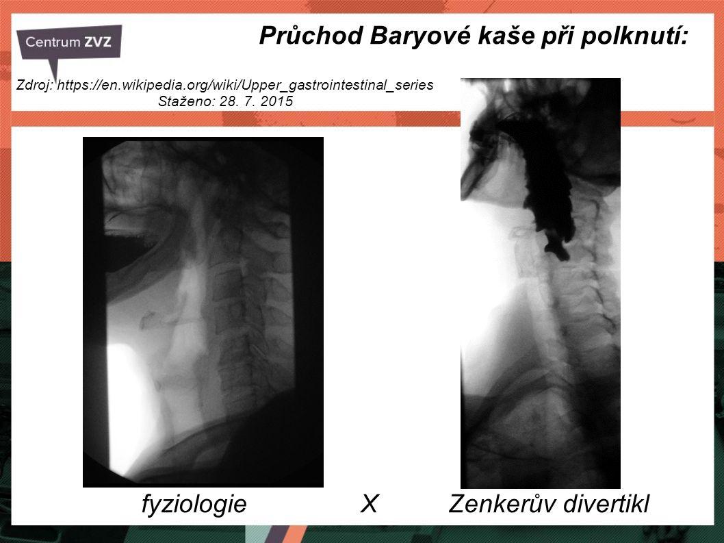 Průchod Baryové kaše při polknutí: fyziologie X Zenkerův divertikl Zdroj: https://en.wikipedia.org/wiki/Upper_gastrointestinal_series Staženo: 28. 7.