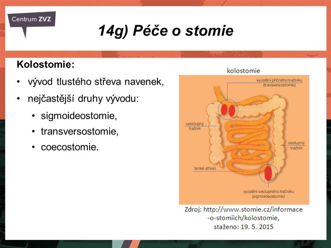14g) Péče o stomie Kolostomie: vývod tlustého střeva navenek, nejčastější druhy vývodu: sigmoideostomie, transversostomie, coecostomie.