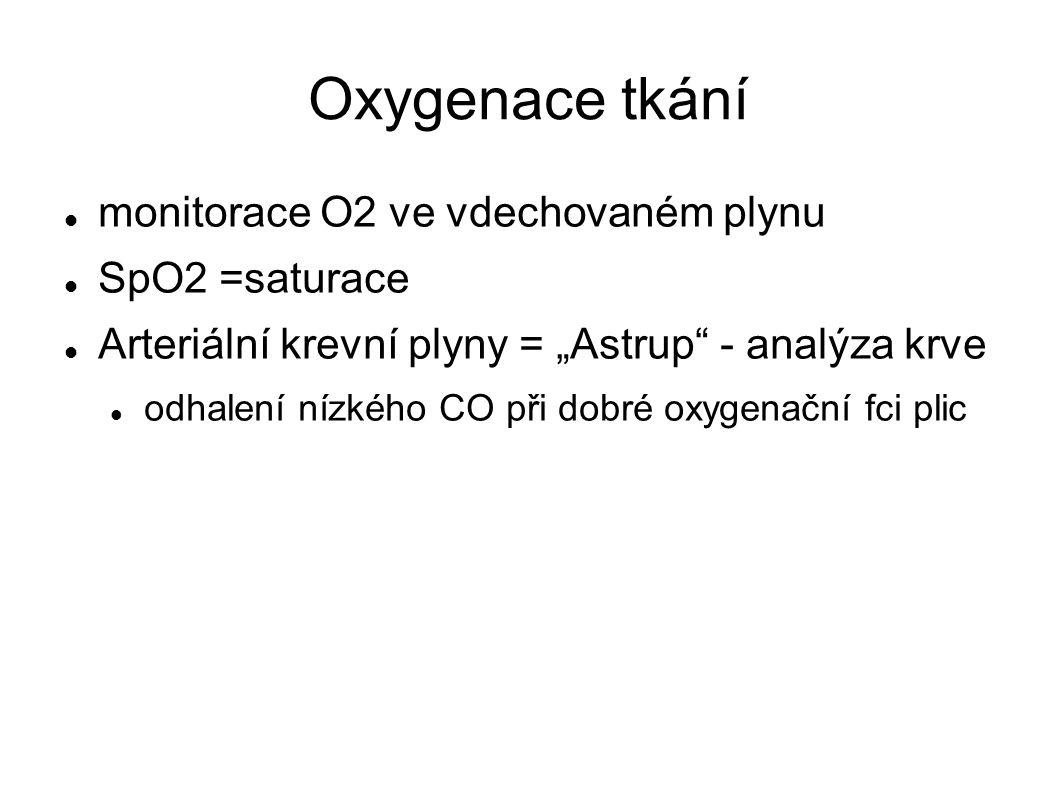 Figure 36-13 Paramagnetic oxygen analyzer.
