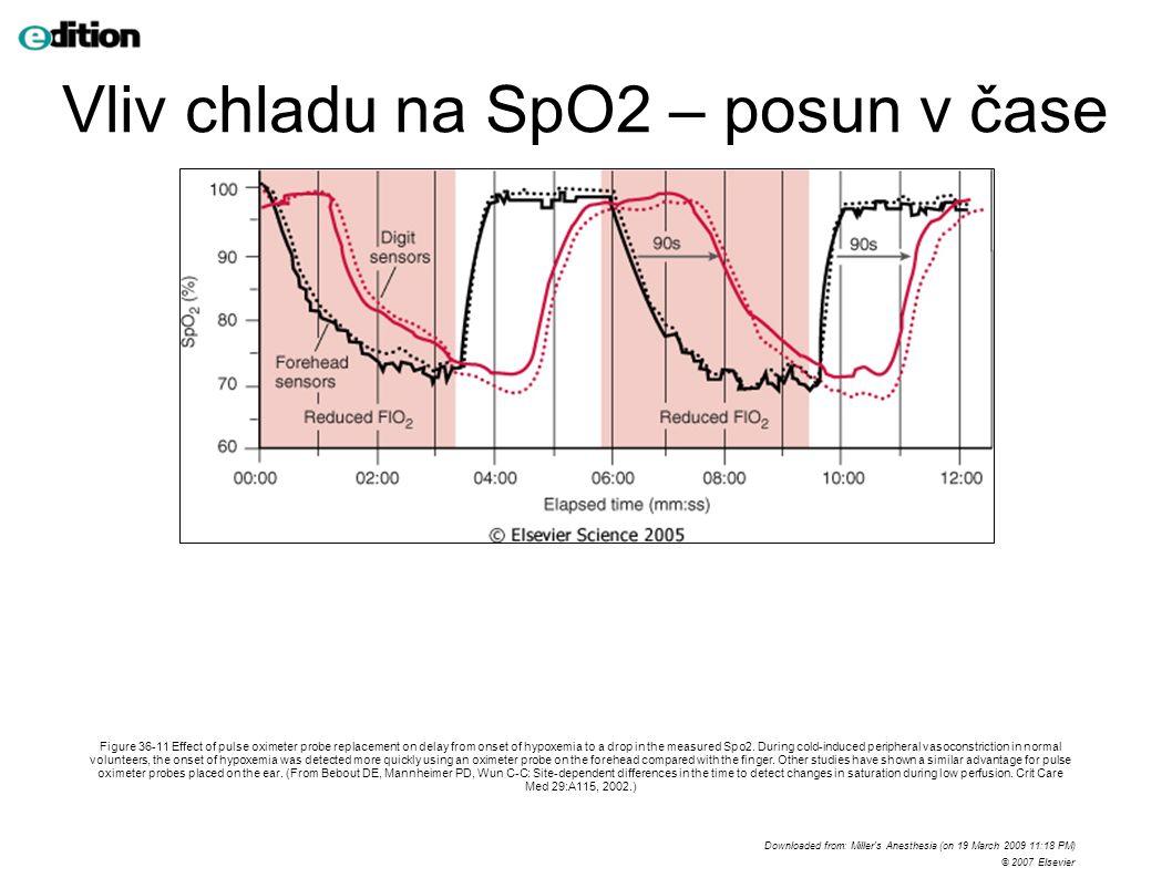 Monitorace ventilace P,V, flow; PV křivka EtCO2 – kapnometrie, kapnograf volatilní anestetika - absorbance