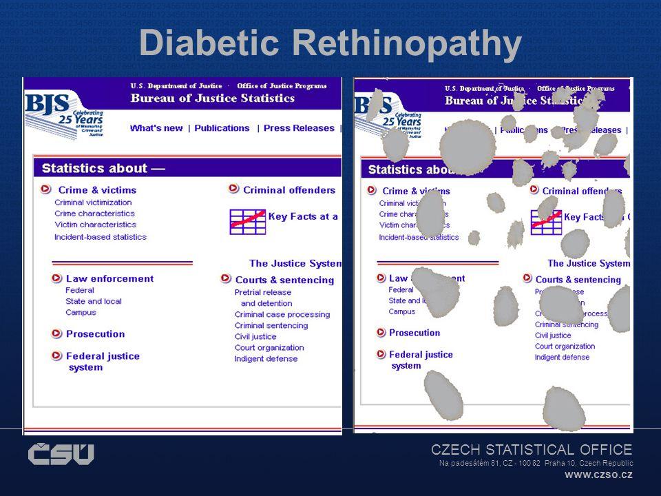 CZECH STATISTICAL OFFICE Na padesátém 81, CZ - 100 82 Praha 10, Czech Republic www.czso.cz Diabetic Rethinopathy