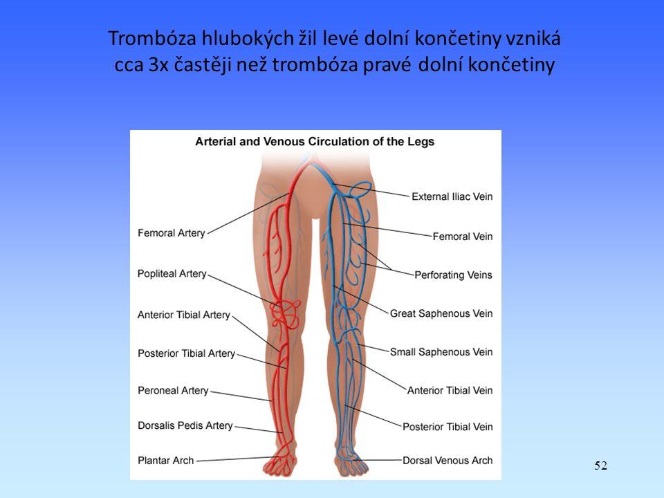 52 Trombóza hlubokých žil levé dolní končetiny vzniká cca 3x častěji než trombóza pravé dolní končetiny