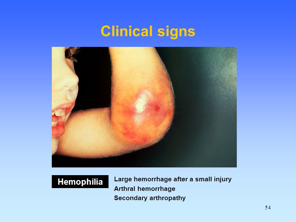 54 Clinical signs Hemophilia Large hemorrhage after a small injury Arthral hemorrhage Secondary arthropathy