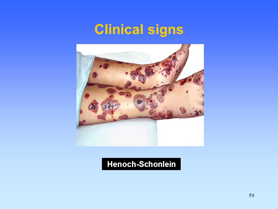 56 Clinical signs Henoch-Schonlein