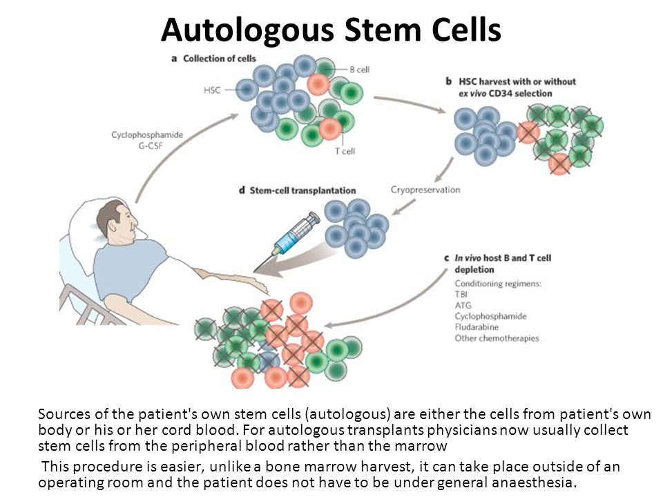 Autologous Stem Cells Sources of the patient's own stem cells (autologous) are either the cells from patient's own body or his or her cord blood. For
