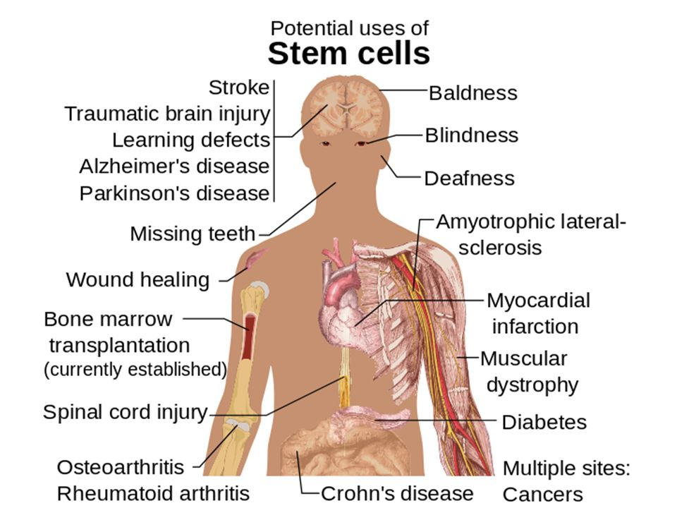 How stem cell therapy (ideally) works.