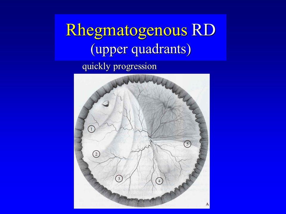 Rhegmatogenous RD (upper quadrants) quickly progression