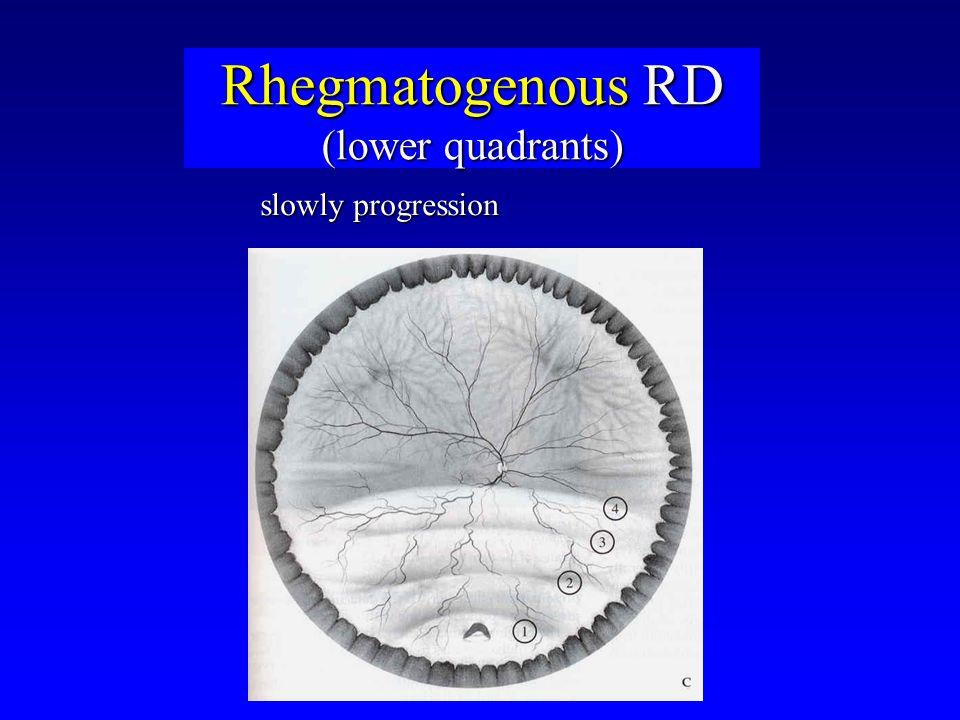 Rhegmatogenous RD (lower quadrants) slowly progression
