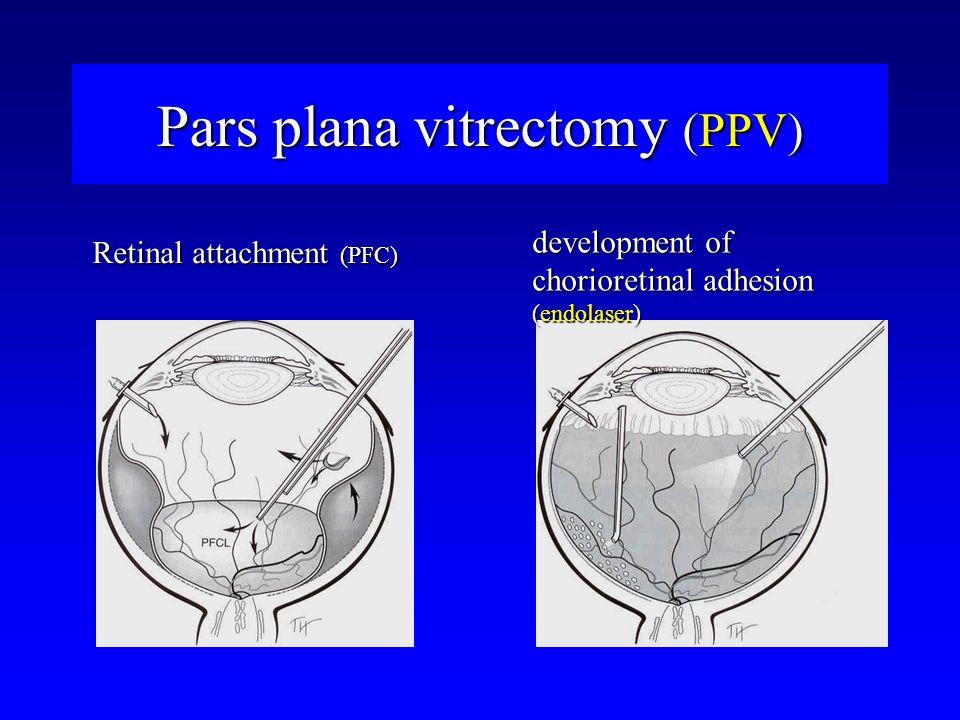 Retinal attachment (PFC) development of chorioretinal adhesion (endolaser)