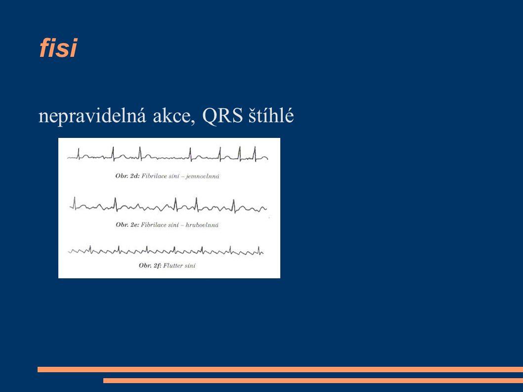 fisi nepravidelná akce, QRS štíhlé