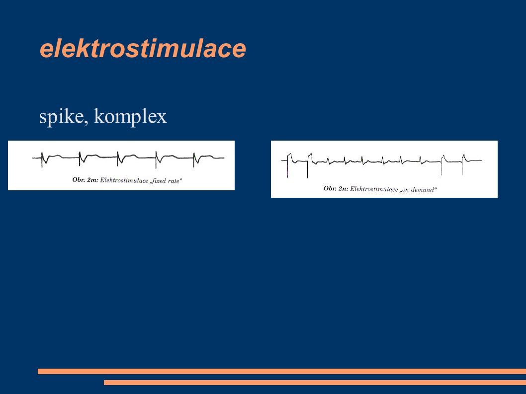 elektrostimulace spike, komplex