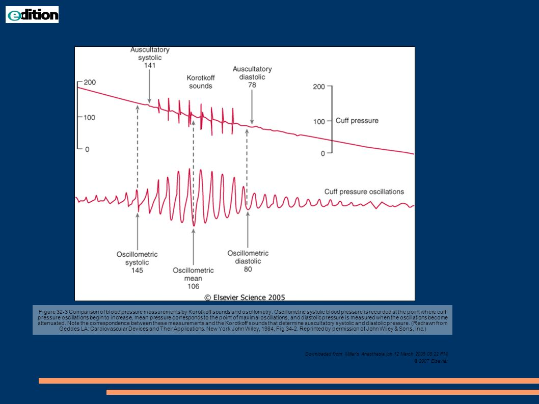 Figure 32-3 Comparison of blood pressure measurements by Korotkoff sounds and oscillometry. Oscillometric systolic blood pressure is recorded at the p
