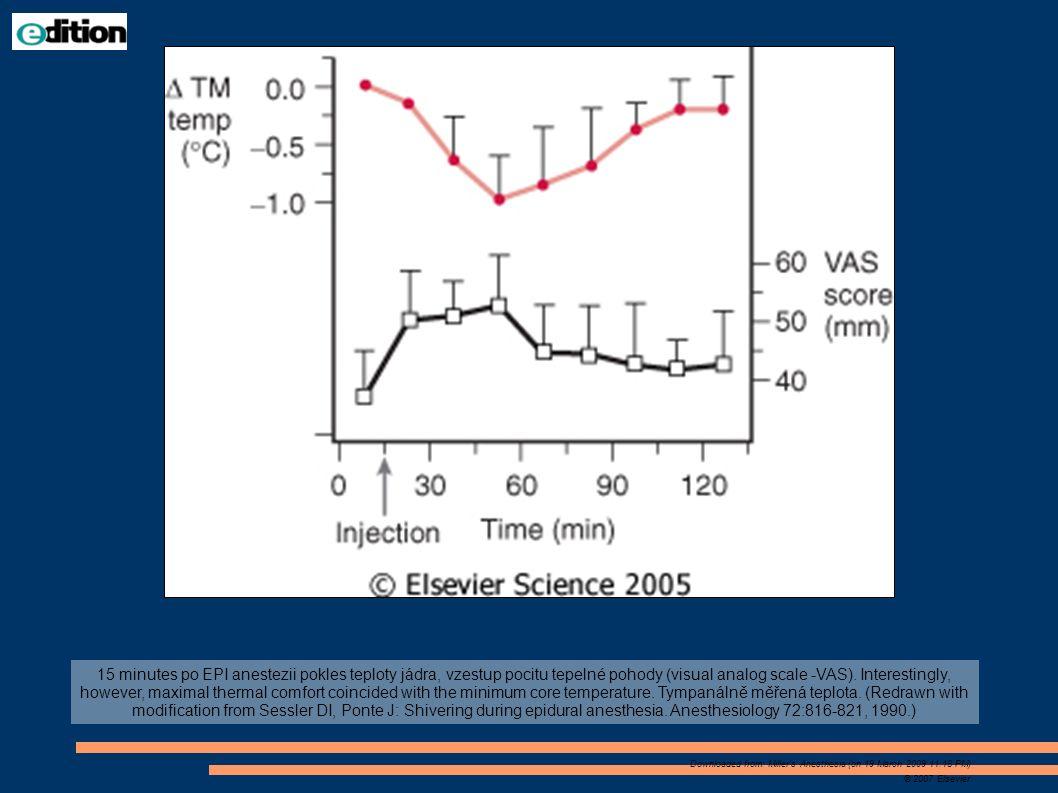 15 minutes po EPI anestezii pokles teploty jádra, vzestup pocitu tepelné pohody (visual analog scale -VAS). Interestingly, however, maximal thermal co