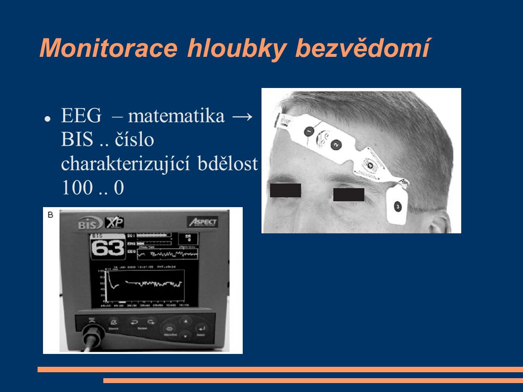 Monitorace hloubky bezvědomí EEG – matematika → BIS.. číslo charakterizující bdělost 100.. 0