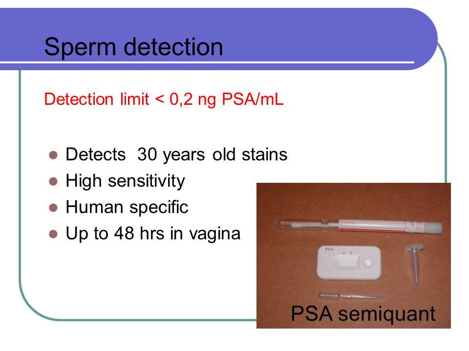Financial effectiveness Sperm 105 CZK/test Blood 110 CZK/test Explosives 120 CZK/test Drugs 175 CZK/test Prompt results x