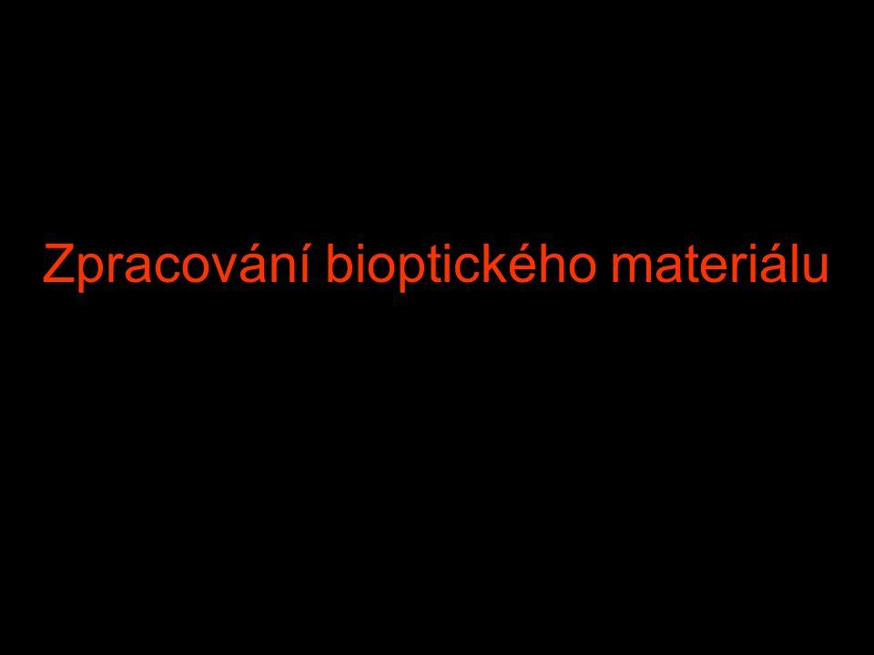 Zpracování bioptického materiálu