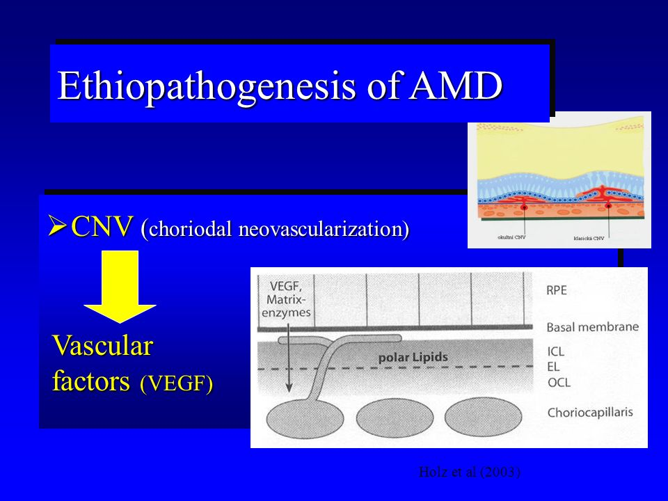 CNV ( choriodal neovascularization) Holz et al (2003) Vascular factors (VEGF) Ethiopathogenesis of AMD