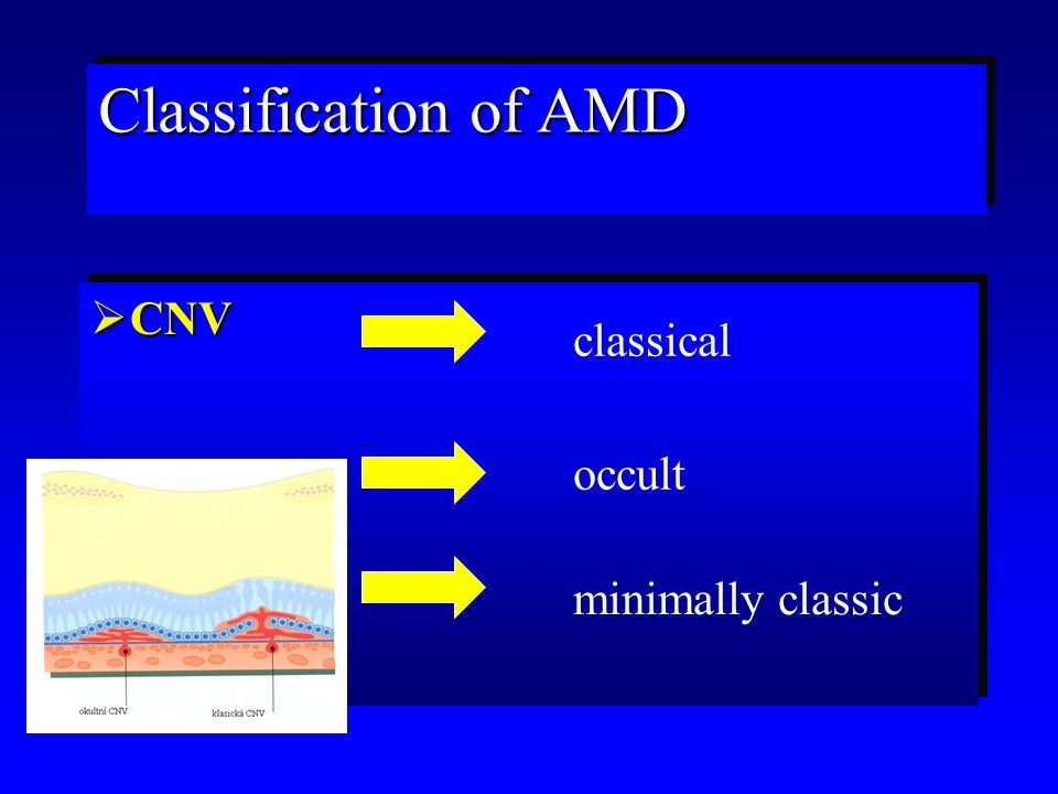Therapy of AMD (summary)  Anti VEGF  PDT (photodynamic therapy)  Anti VEGF  PDT (photodynamic therapy)