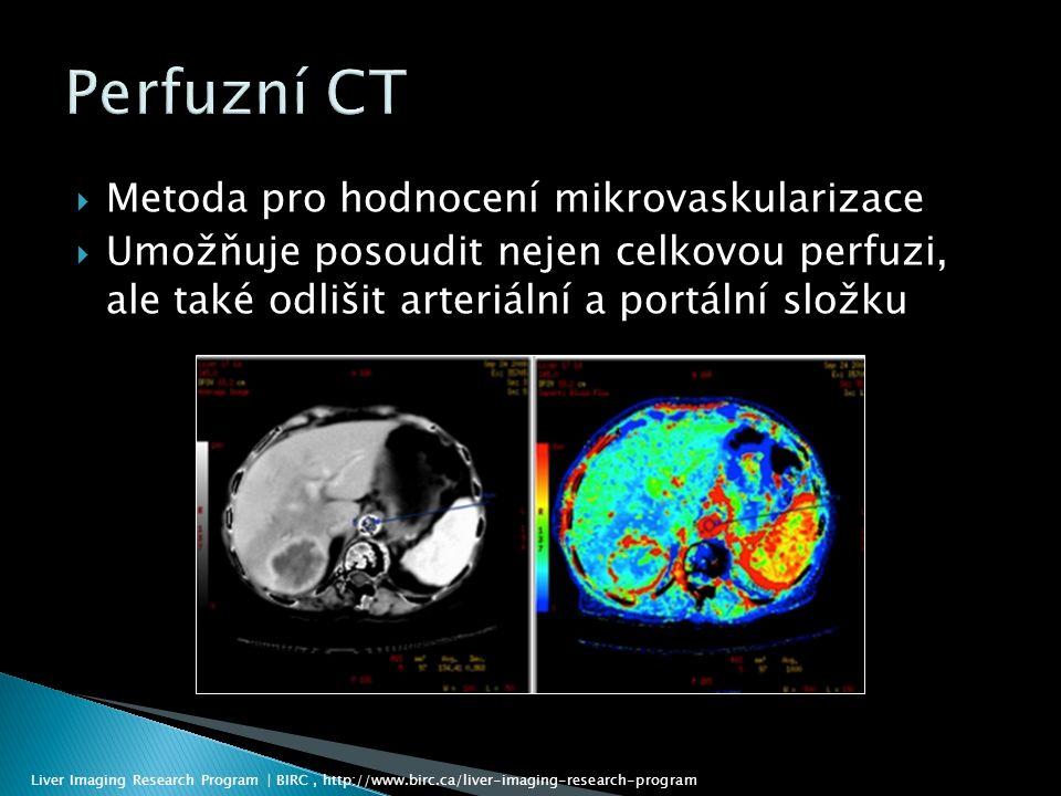  Metoda pro hodnocení mikrovaskularizace  Umožňuje posoudit nejen celkovou perfuzi, ale také odlišit arteriální a portální složku Liver Imaging Research Program | BIRC, http://www.birc.ca/liver-imaging-research-program