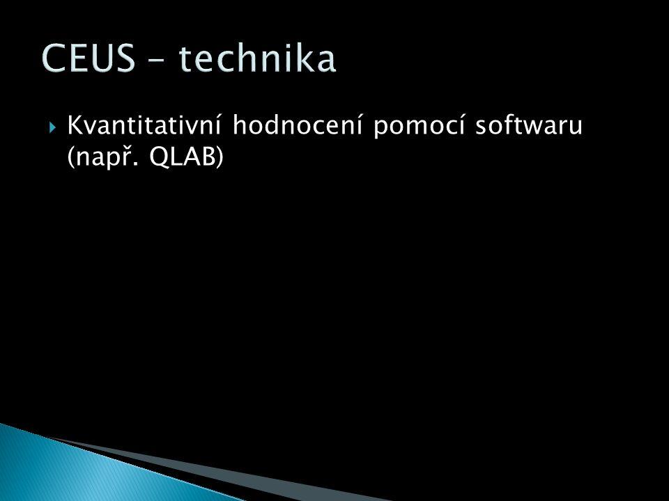  Kvantitativní hodnocení pomocí softwaru (např. QLAB)