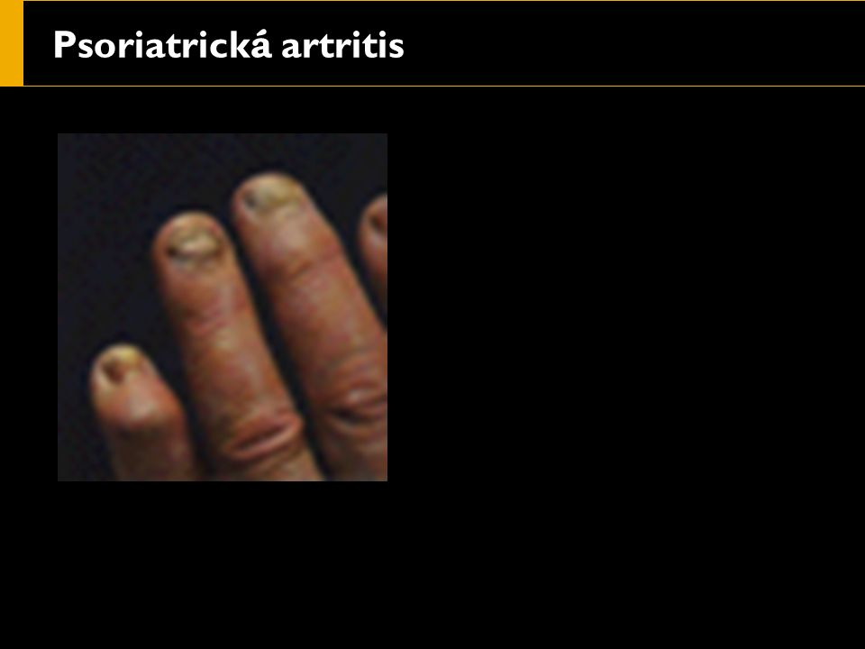 Psoriatrick á artritis