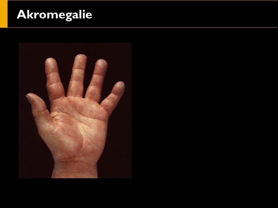 Akromegalie
