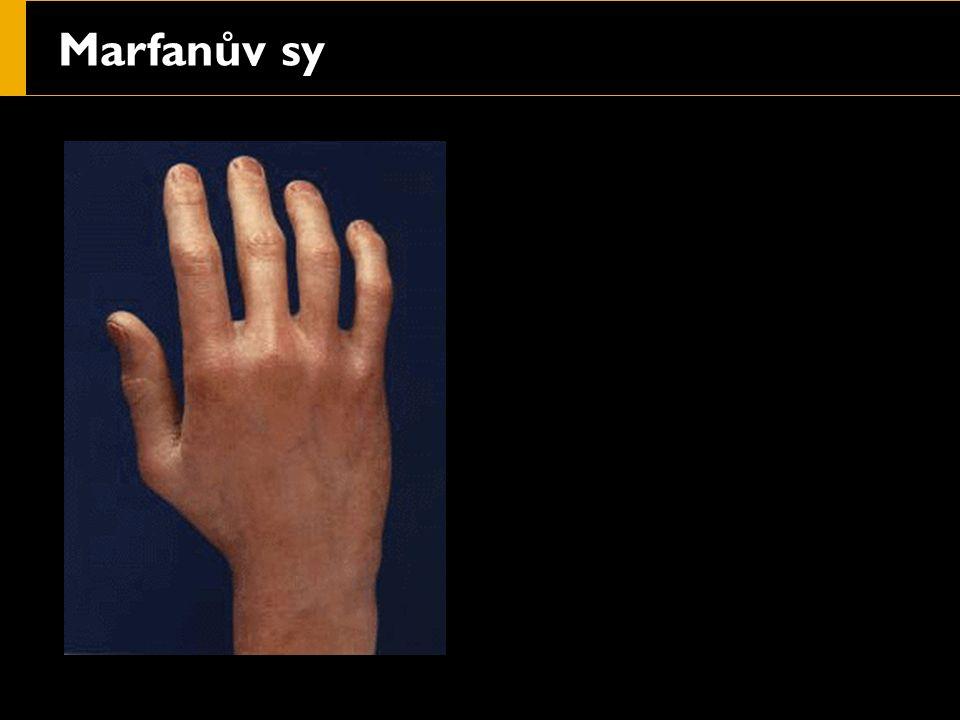Marfanův sy