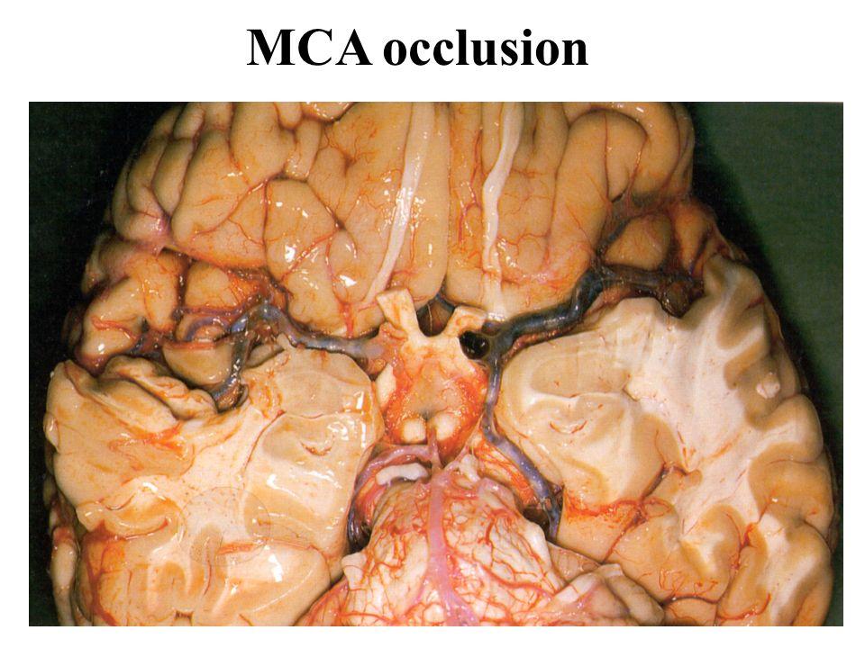 MCA occlusion