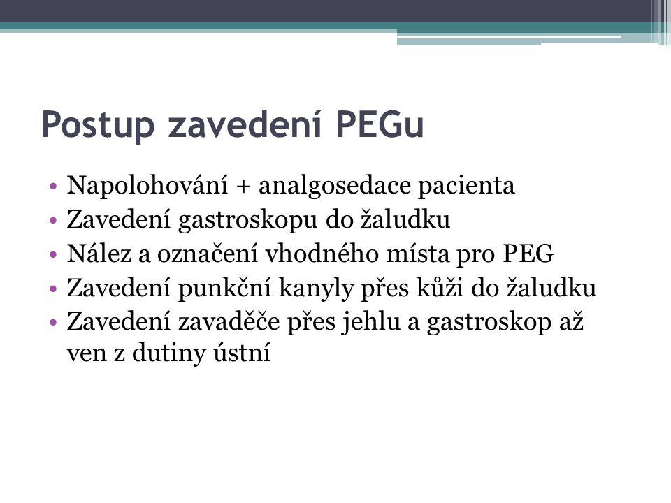Postup zavedení PEGu Napolohování + analgosedace pacienta Zavedení gastroskopu do žaludku Nález a označení vhodného místa pro PEG Zavedení punkční kanyly přes kůži do žaludku Zavedení zavaděče přes jehlu a gastroskop až ven z dutiny ústní