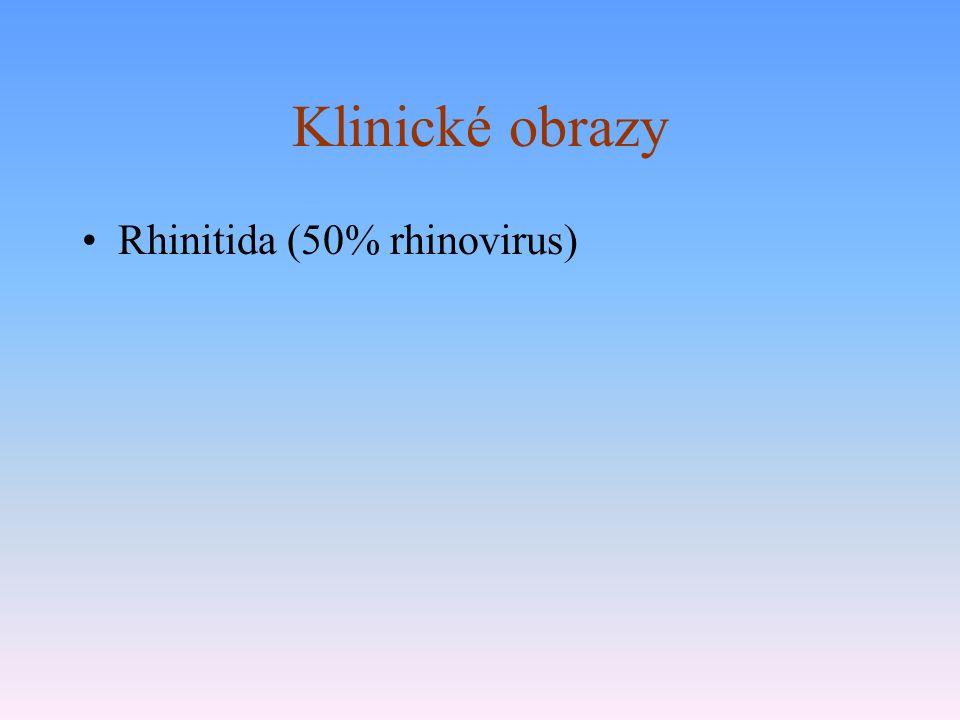 Klinické obrazy Rhinitida (50% rhinovirus)