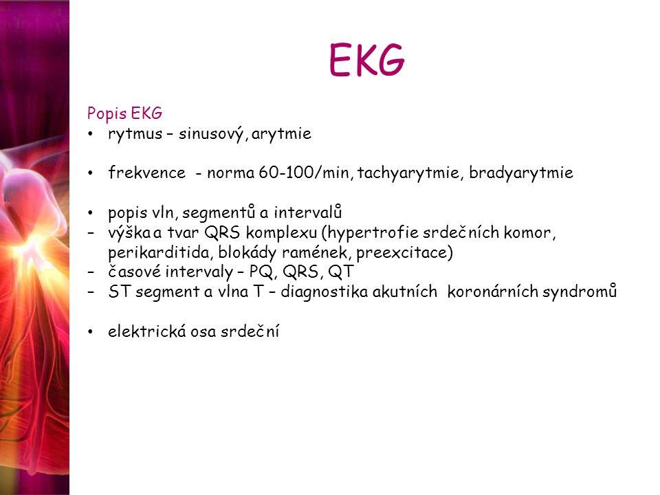 EKG Popis EKG rytmus – sinusový, arytmie frekvence - norma 60-100/min, tachyarytmie, bradyarytmie popis vln, segmentů a intervalů –výška a tvar QRS ko