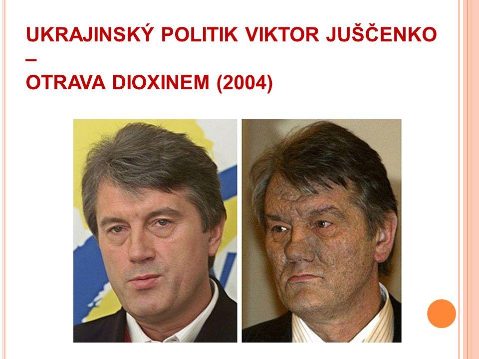 UKRAJINSKÝ POLITIK VIKTOR JUŠČENKO – OTRAVA DIOXINEM (2004)