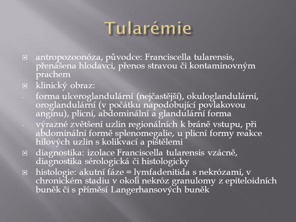  antropozoonóza, původce: Franciscella tularensis, přenášena hlodavci, přenos stravou či kontaminovným prachem  klinický obraz: - forma ulceroglandu